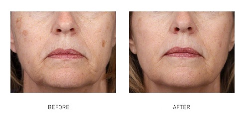skin-pigmentation-laser-treatment-1
