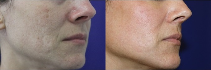 dieu-tri-seo-laser-resurfacing