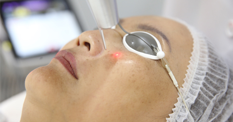 skin-pigmentaion-Dark-spot-laser-treatment_paragonclinic (1)