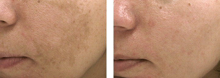 skin-pigmentation-laser-treatment