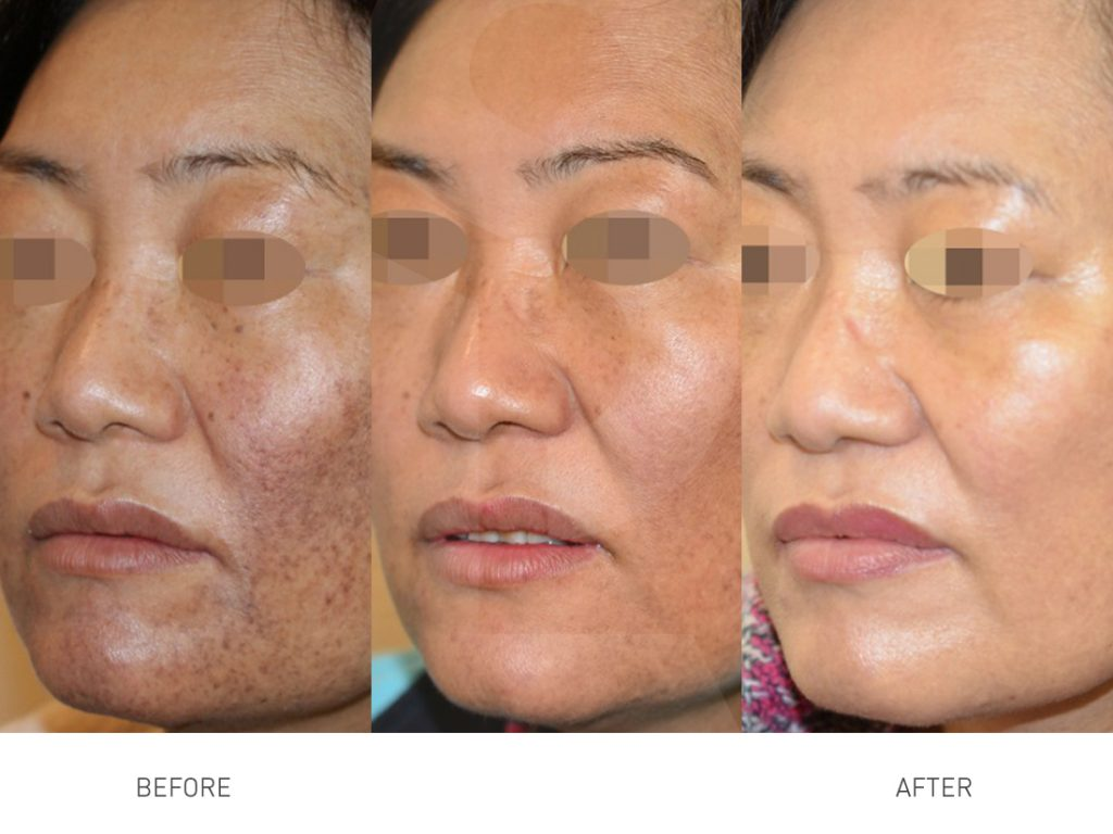 skin-pigmentation-laser-treatment-4