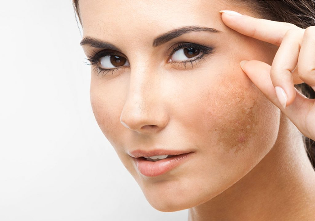 skin-pigmentation-laser-treatment-9