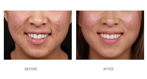 acne-removal-laser-paragon-clinic