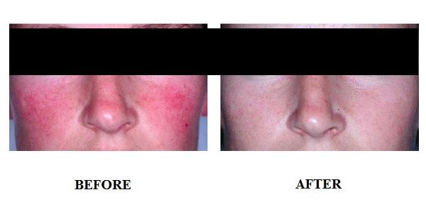 dieu-tri-da-nhay-cam-voi-anti-inflammatory-laser