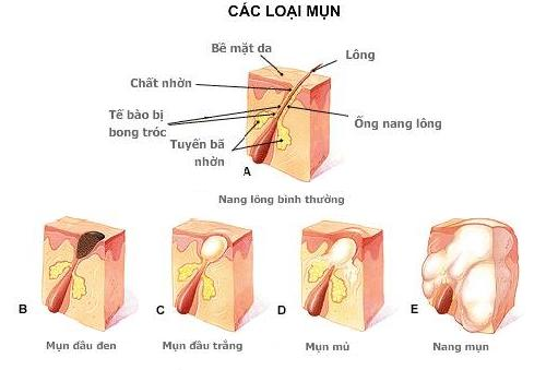 cac-loai-mun-acne-removal-laser-paragon-clinic
