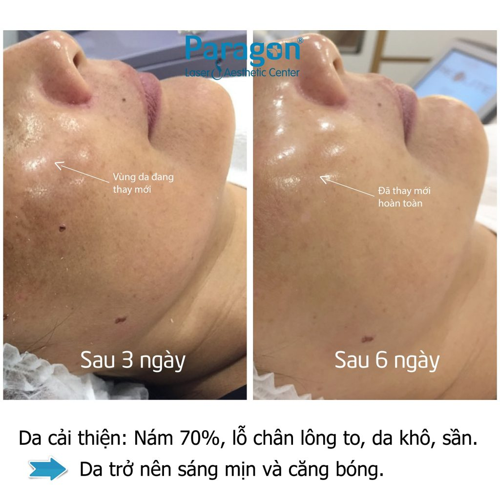 paragonclinic-before-after-skin-booster (2)