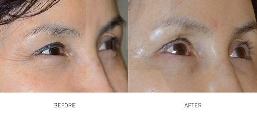 tetra-lifting-laser-before-after-xoa-nhan-paragon-clinic