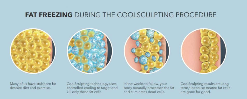 what-is-coolsculpting