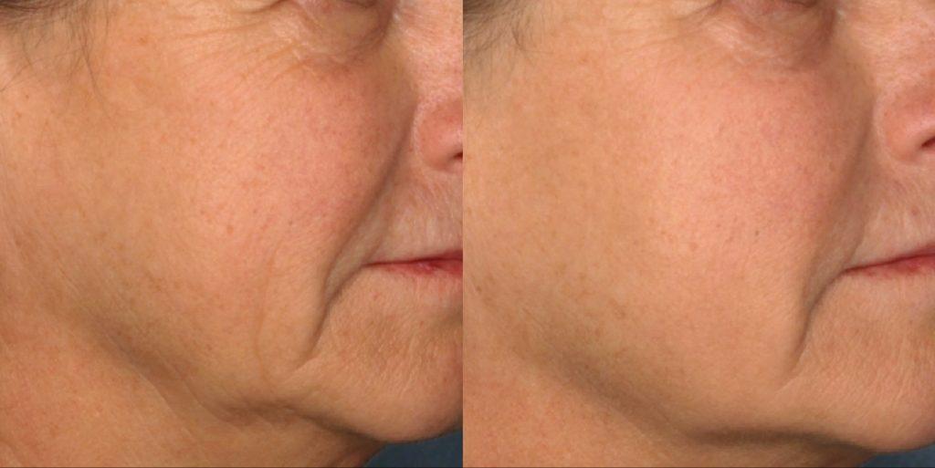 dieu-tri-tre-hoa-da-voi-anti-aging-cooltouch-laser