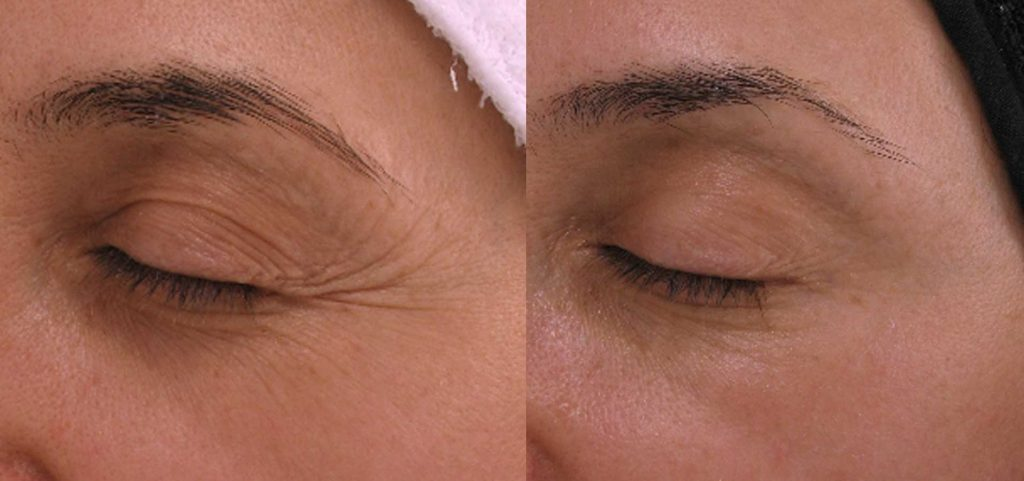skin-rejuvenation-anti-aging-cooltouch-laser