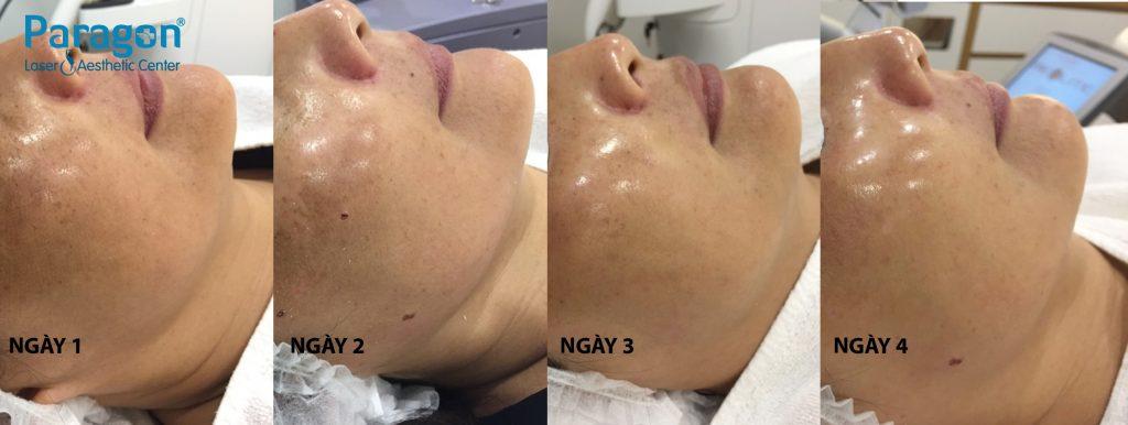 chemo-peel_paragon-clinic (3)
