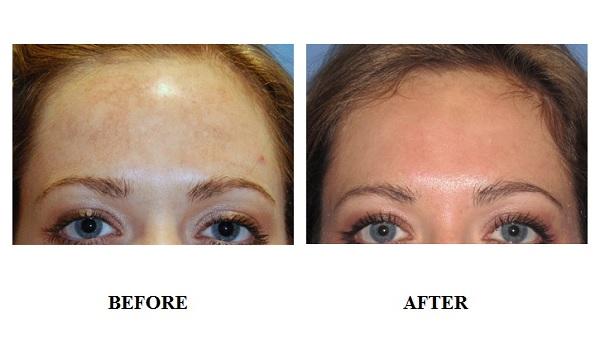 dpl-acne-treatment