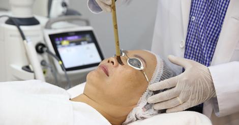 chemo-peel_paragon-clinic