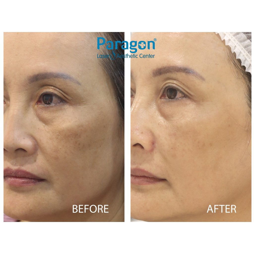 paragonclinic-before-after-skin-booster (1)