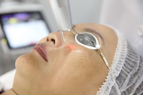 paragonclinic-laser-resurfacing