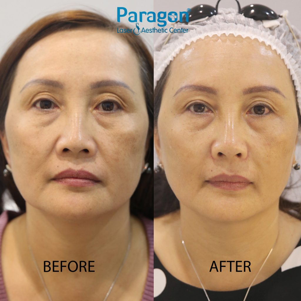 skin-booster-before-after-paragon-clinic