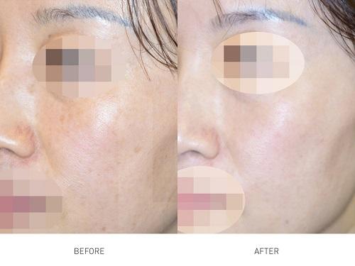 skin-pigmentation-laser-treatment