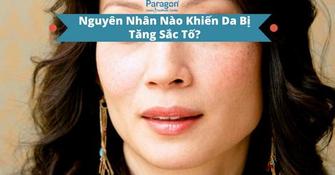 nguyen-nhan-nao-khien-da-bi-tang-sac-to