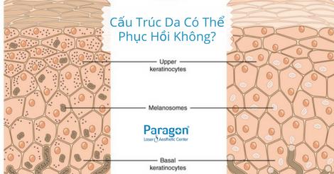 cau-truc-da-co-phuc-hoi-khong
