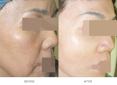 dieu-tri-sac-to-da-dark-spot-removal-paragon-clinic