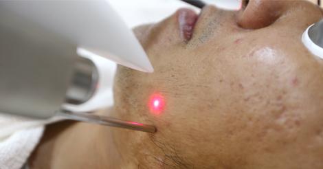 dieu-tri-mun-acne-removal-laser-paragon-clinic