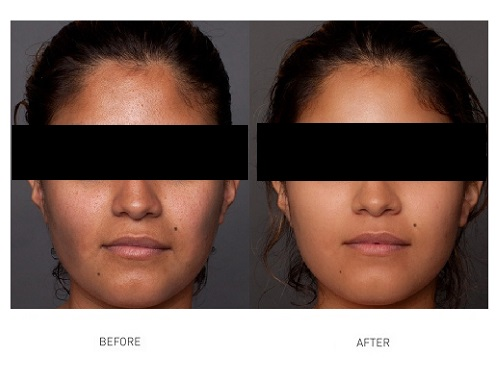 hydrate-meso-treatment-before-after