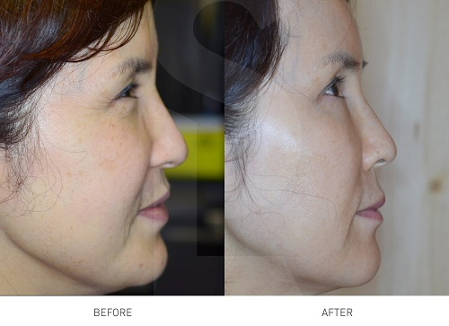 tetra-lifting-laser-before-after-xoa-nhan-paragon-clinic