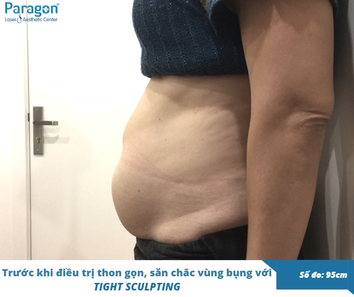 thon-gon-san-chac-vung-bung-tight-sculpting-review-paragon-clinic