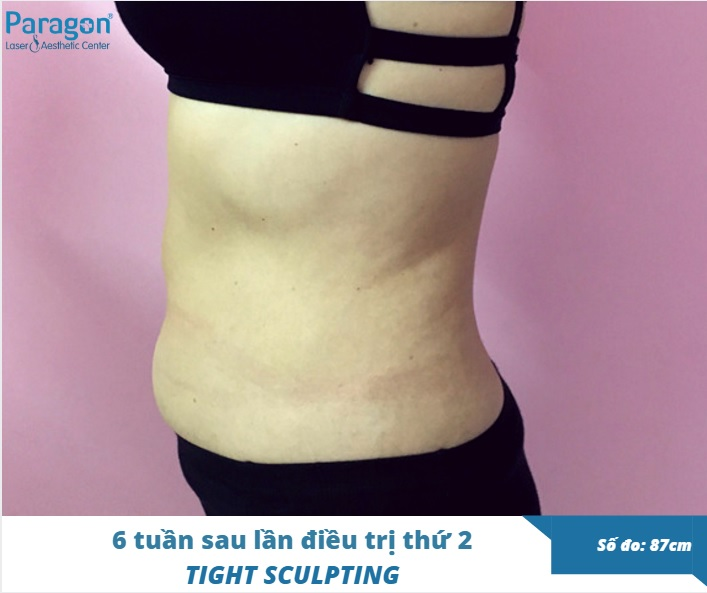 thon-gon-san-chac-vung-bung-tight-sculpting-review-paragon-clinic3