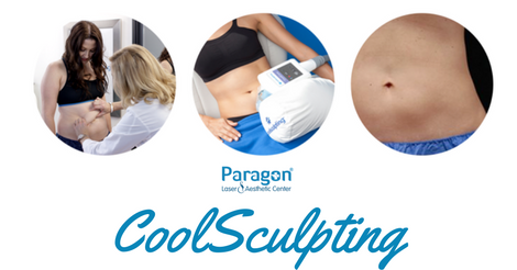 coolsculpting-reviews